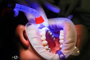 dentist-1864921_960_720